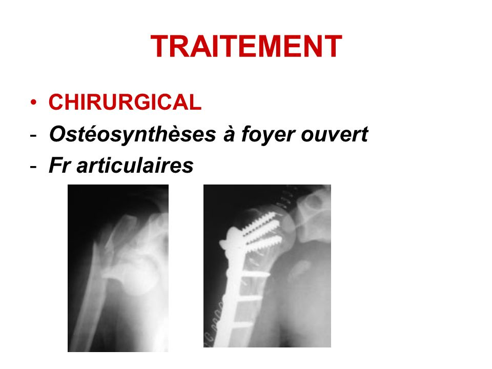 TRAITEMENT CHIRURGICAL Ostéosynthèses à foyer ouvert Fr articulaires