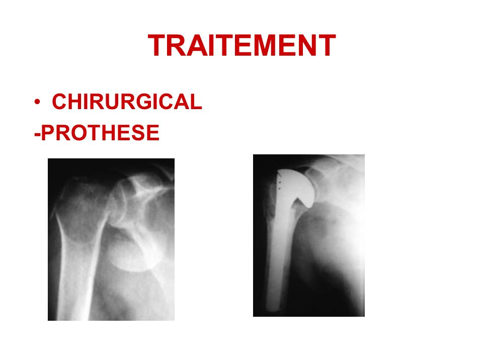 TRAITEMENT CHIRURGICAL -PROTHESE
