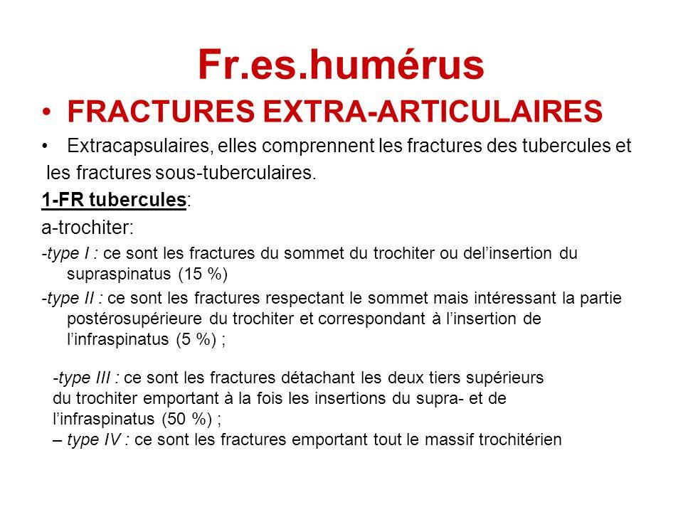 Fr.es.humérus FRACTURES EXTRA-ARTICULAIRES