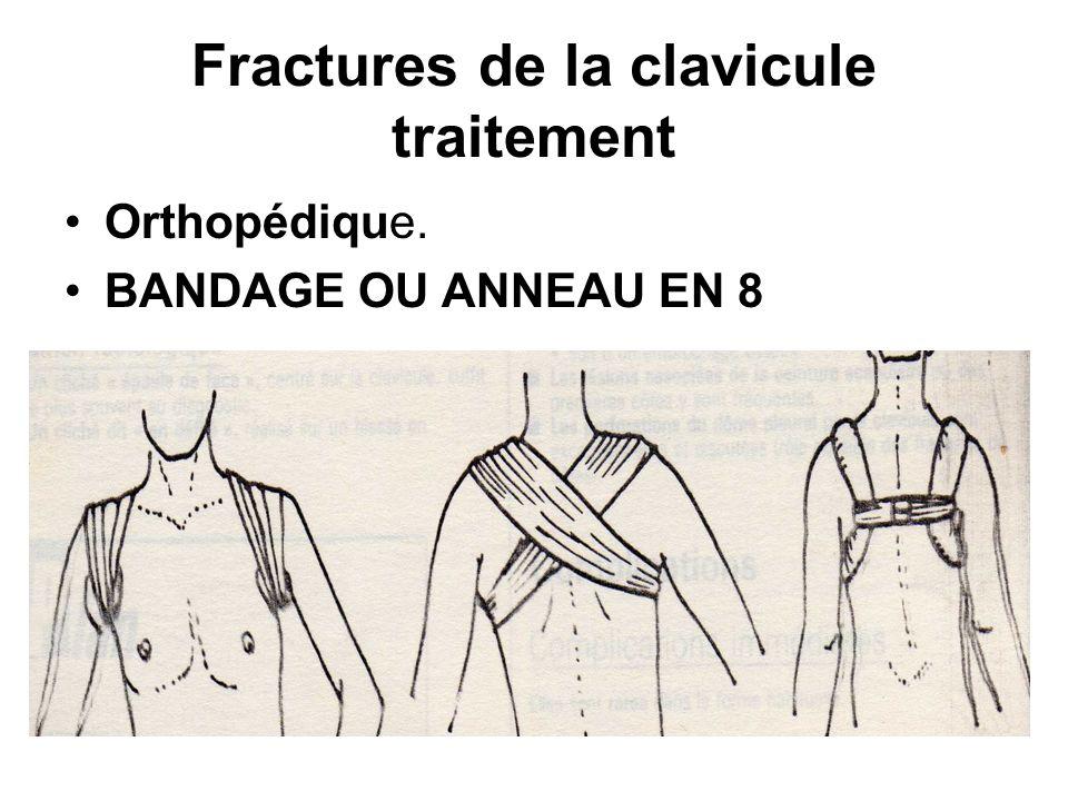 Fractures de la clavicule traitement