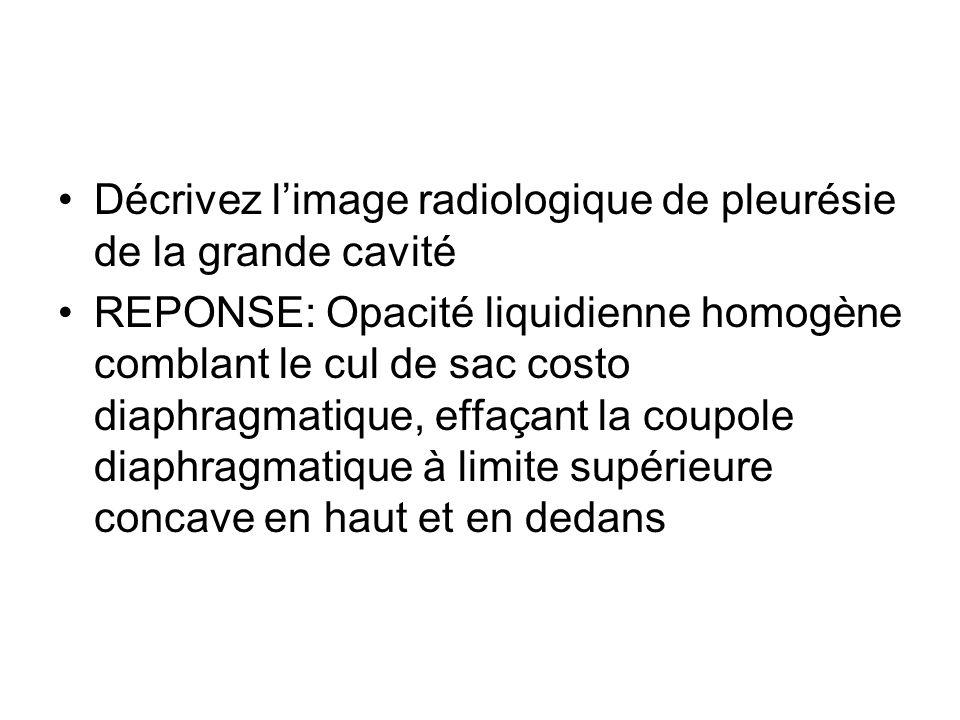 Décrivez l'image radiologique de pleurésie de la grande cavité