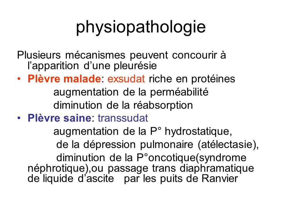 physiopathologie Plusieurs mécanismes peuvent concourir à l'apparition d'une pleurésie. Plèvre malade: exsudat riche en protéines.