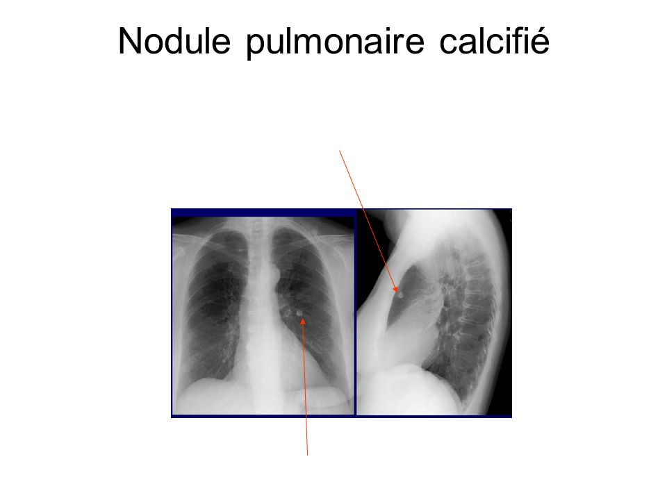 Nodule pulmonaire calcifié