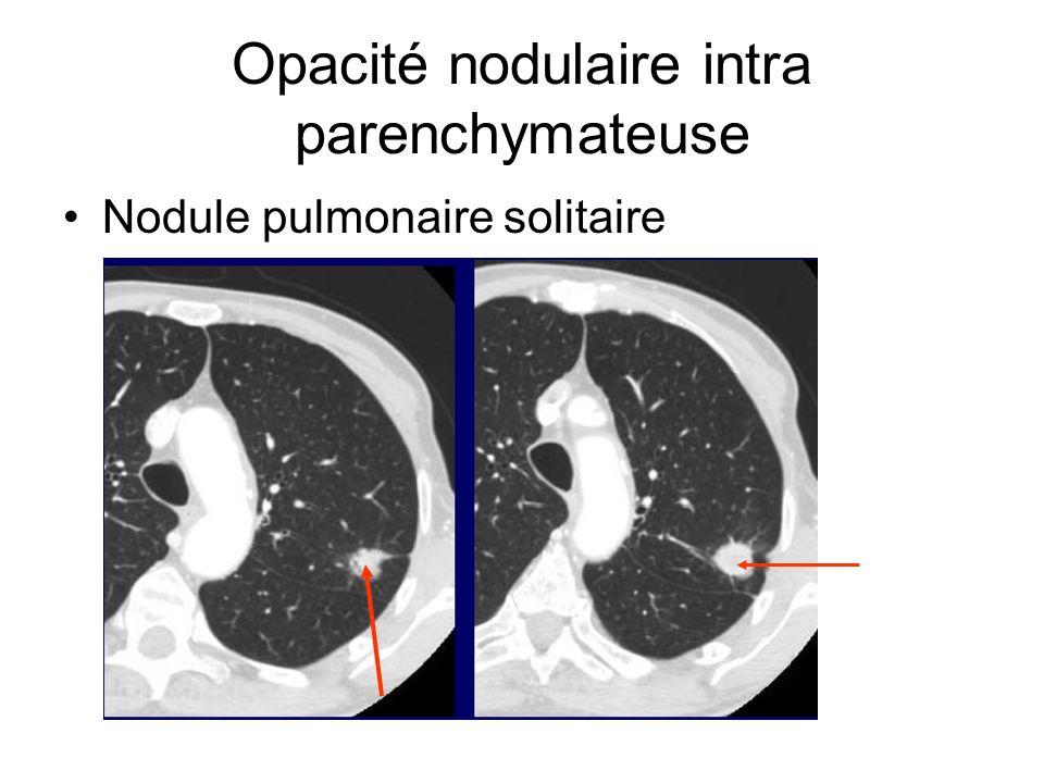 Opacité nodulaire intra parenchymateuse