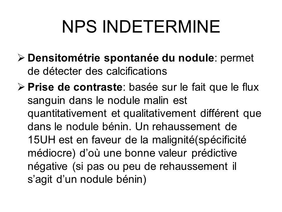 NPS INDETERMINEDensitométrie spontanée du nodule: permet de détecter des calcifications.