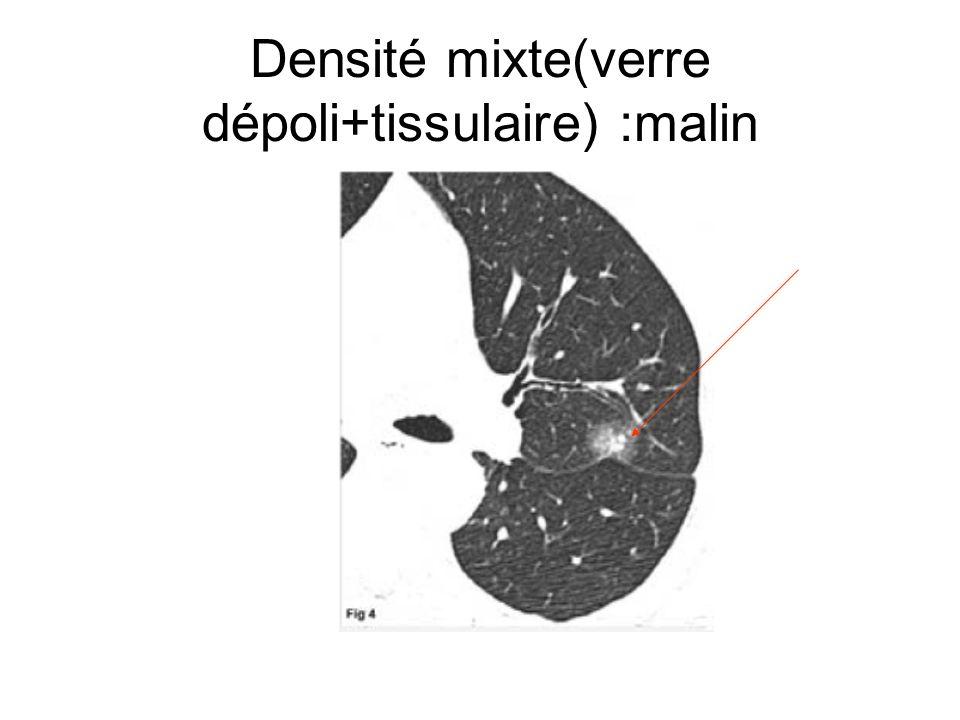 Densité mixte(verre dépoli+tissulaire) :malin