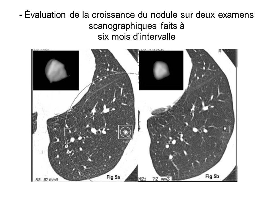 - Évaluation de la croissance du nodule sur deux examens scanographiques faits à six mois d'intervalle