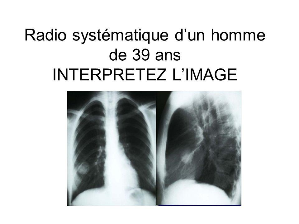 Radio systématique d'un homme de 39 ans INTERPRETEZ L'IMAGE