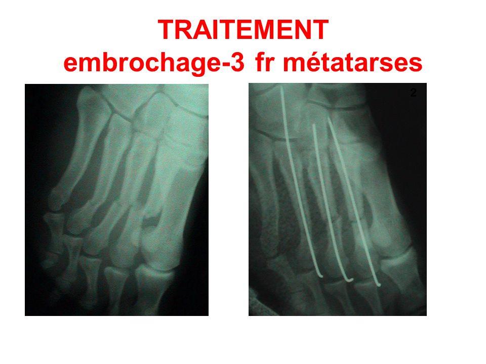 TRAITEMENT embrochage-3 fr métatarses