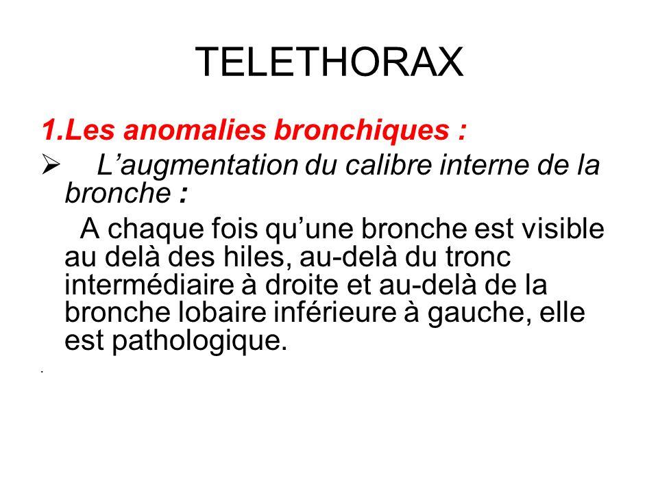 TELETHORAX Les anomalies bronchiques :