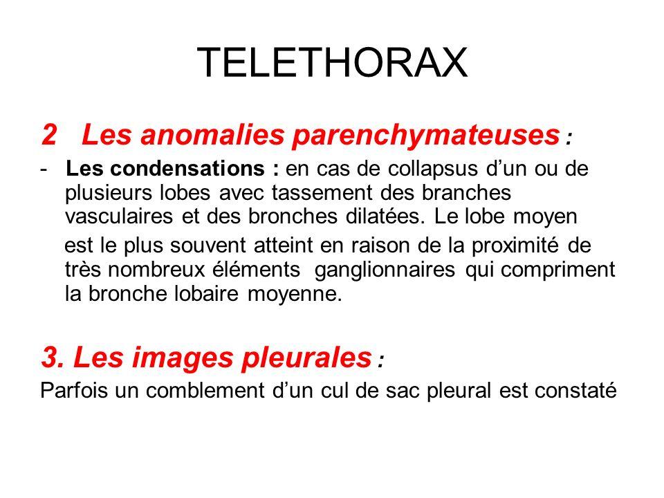 TELETHORAX 2 Les anomalies parenchymateuses :