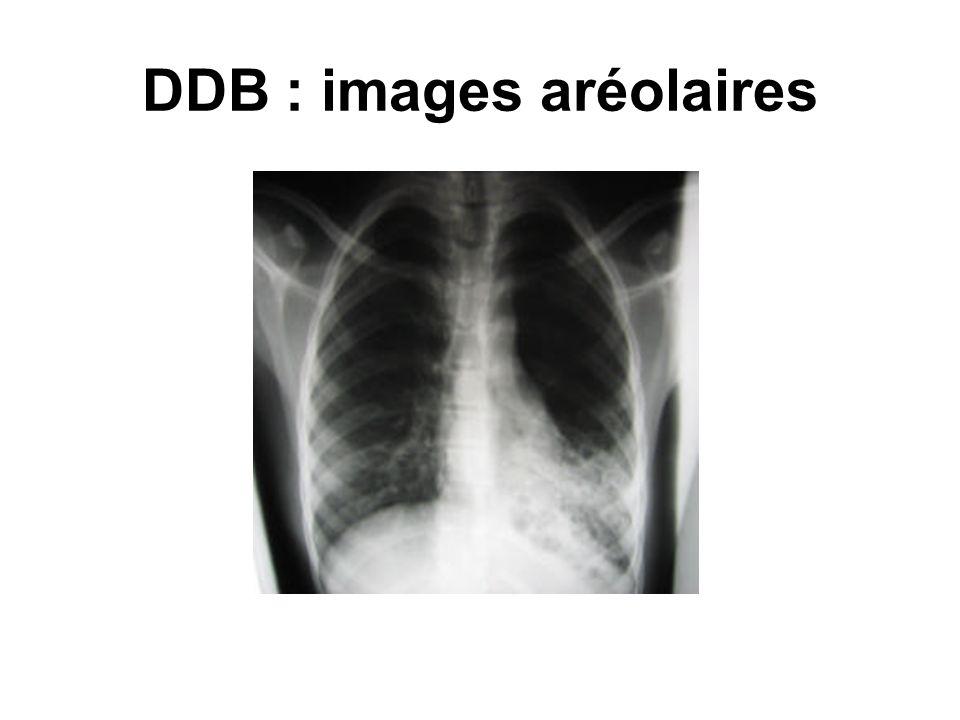 DDB : images aréolaires
