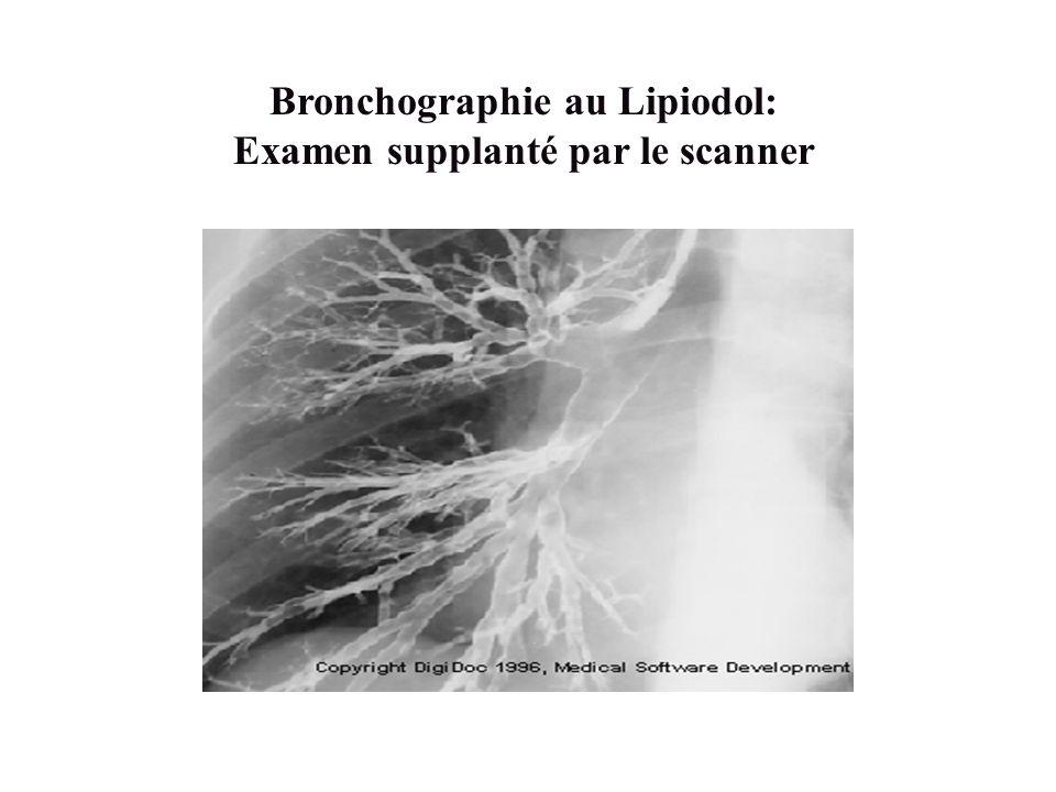 Bronchographie au Lipiodol: Examen supplanté par le scanner