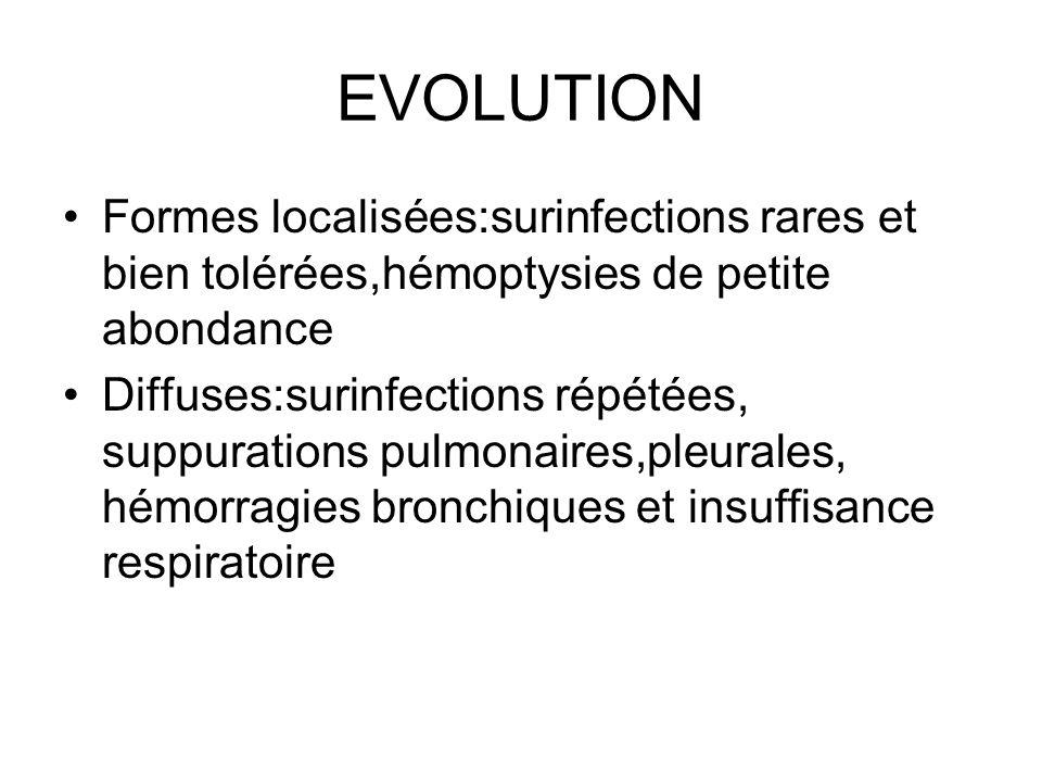 EVOLUTION Formes localisées:surinfections rares et bien tolérées,hémoptysies de petite abondance.