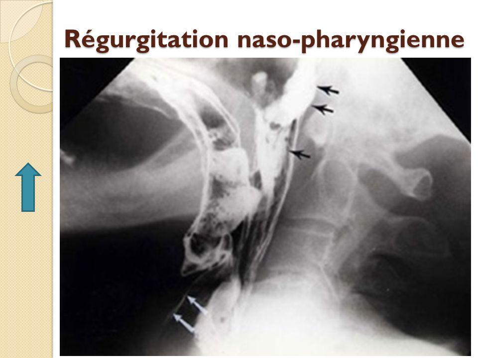 Régurgitation naso-pharyngienne