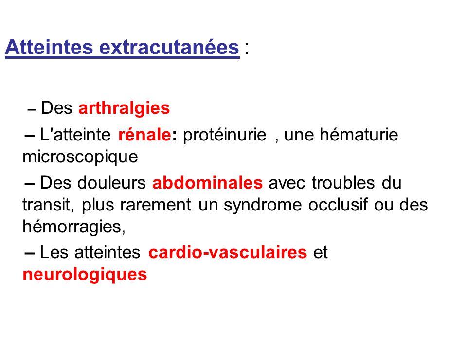 Atteintes extracutanées : – Des arthralgies