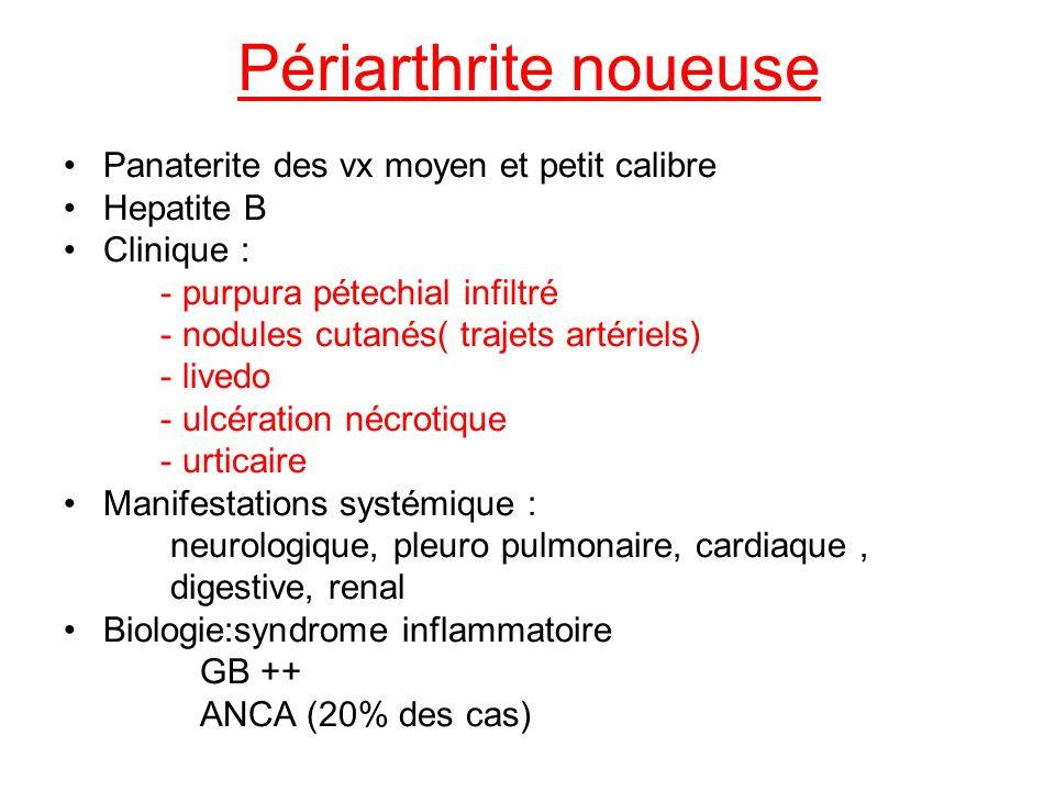 Périarthrite noueuse Panaterite des vx moyen et petit calibre