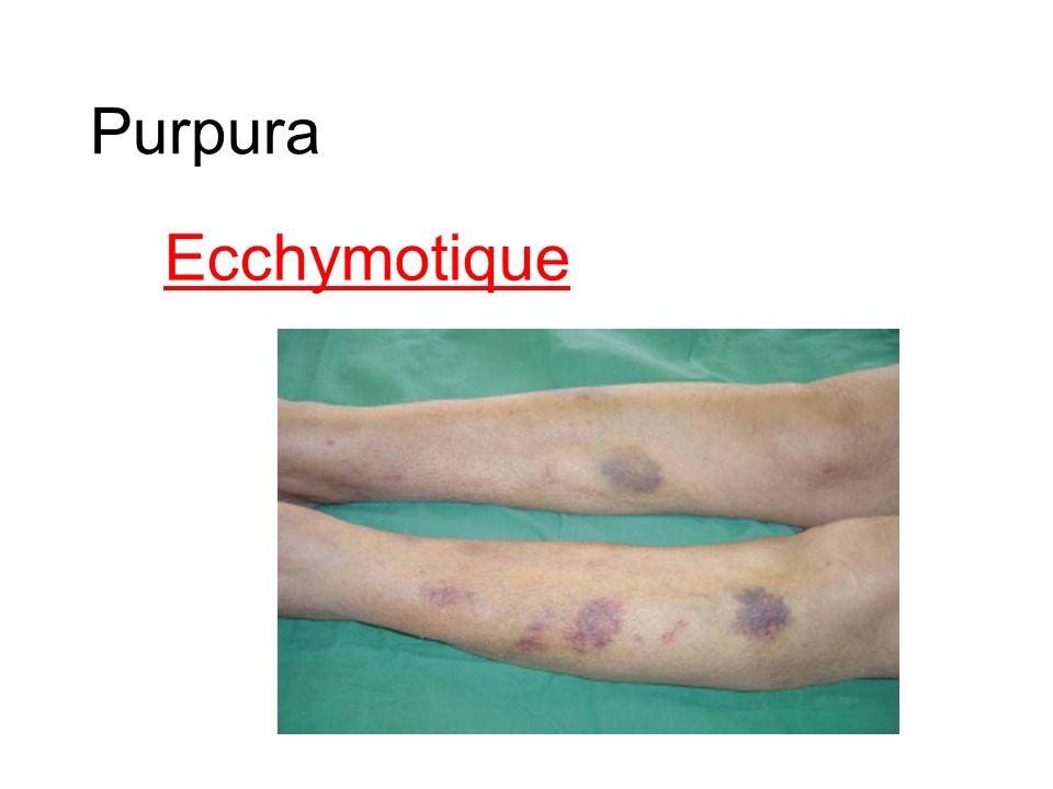 Purpura Ecchymotique