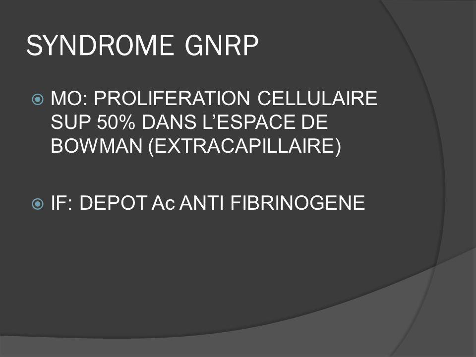 SYNDROME GNRP MO: PROLIFERATION CELLULAIRE SUP 50% DANS L'ESPACE DE BOWMAN (EXTRACAPILLAIRE) IF: DEPOT Ac ANTI FIBRINOGENE.