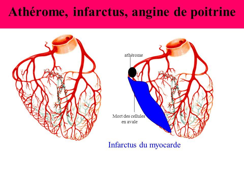 Athérome, infarctus, angine de poitrine
