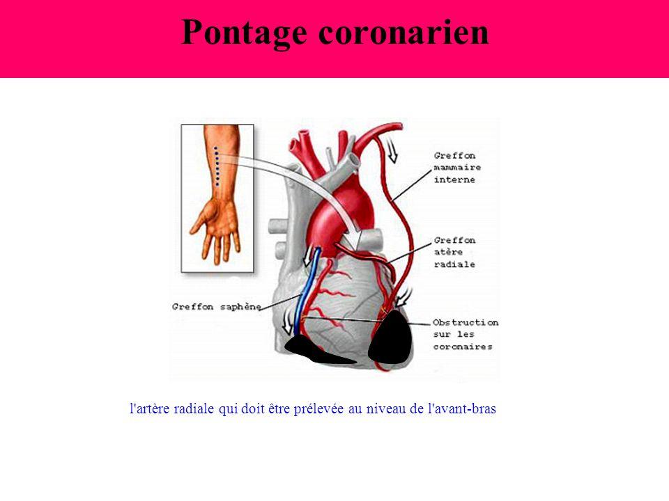 Pontage coronarien l artère radiale qui doit être prélevée au niveau de l avant-bras