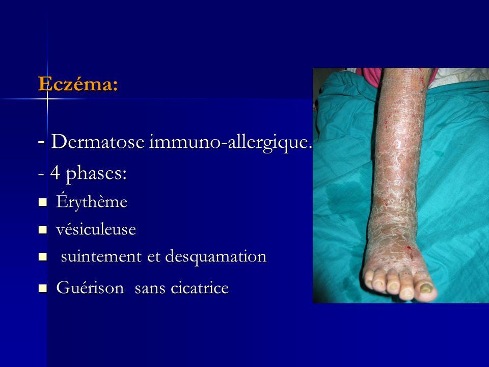 - Dermatose immuno-allergique. - 4 phases: