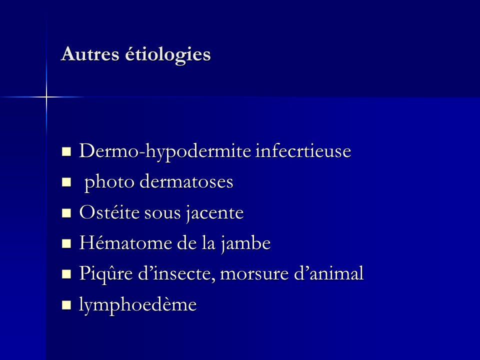 Autres étiologies Dermo-hypodermite infecrtieuse. photo dermatoses. Ostéite sous jacente. Hématome de la jambe.