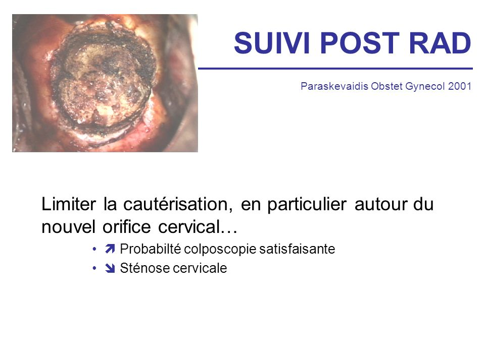 SUIVI POST RAD Paraskevaidis Obstet Gynecol 2001. Limiter la cautérisation, en particulier autour du nouvel orifice cervical…