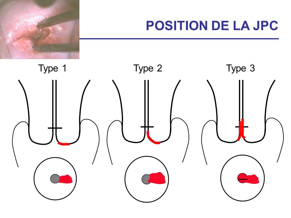 POSITION DE LA JPC Type 1 Type 2 Type 3