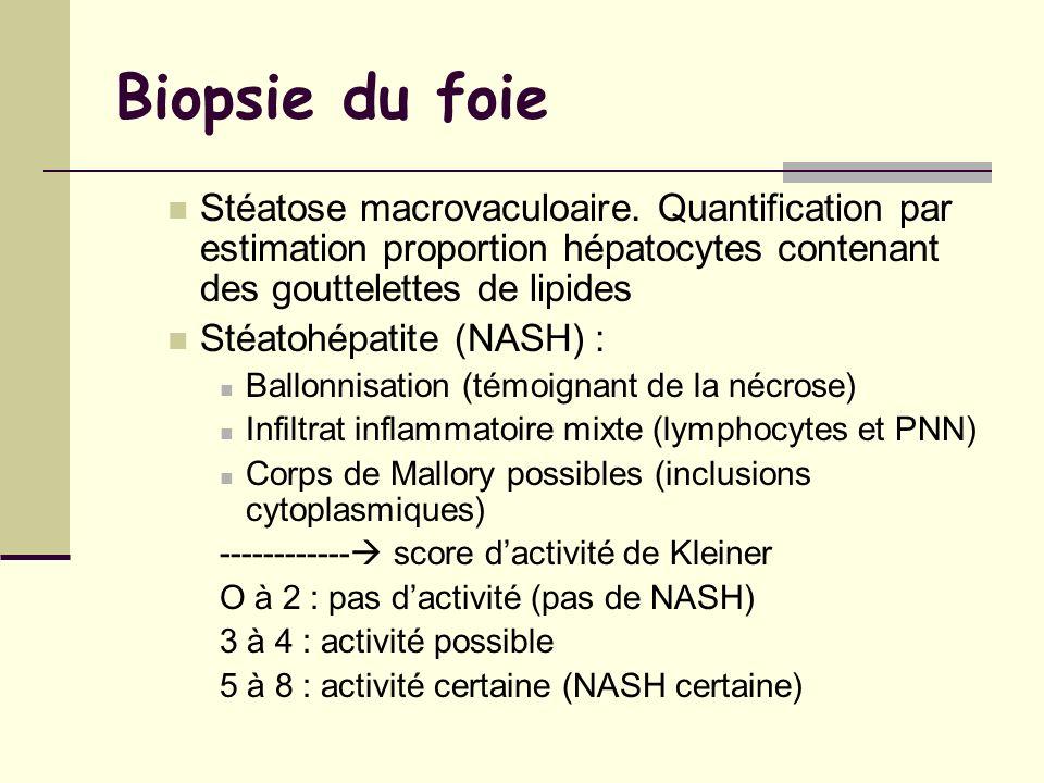 Biopsie du foie Stéatose macrovaculoaire. Quantification par estimation proportion hépatocytes contenant des gouttelettes de lipides.