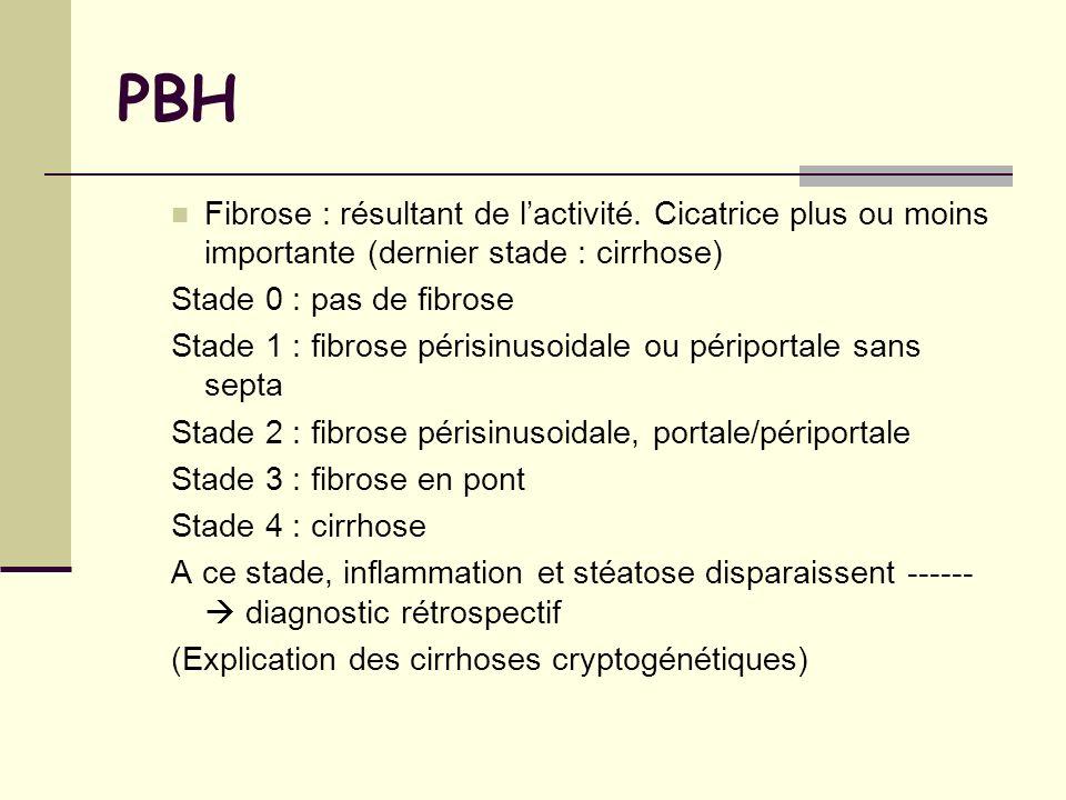 PBH Fibrose : résultant de l'activité. Cicatrice plus ou moins importante (dernier stade : cirrhose)