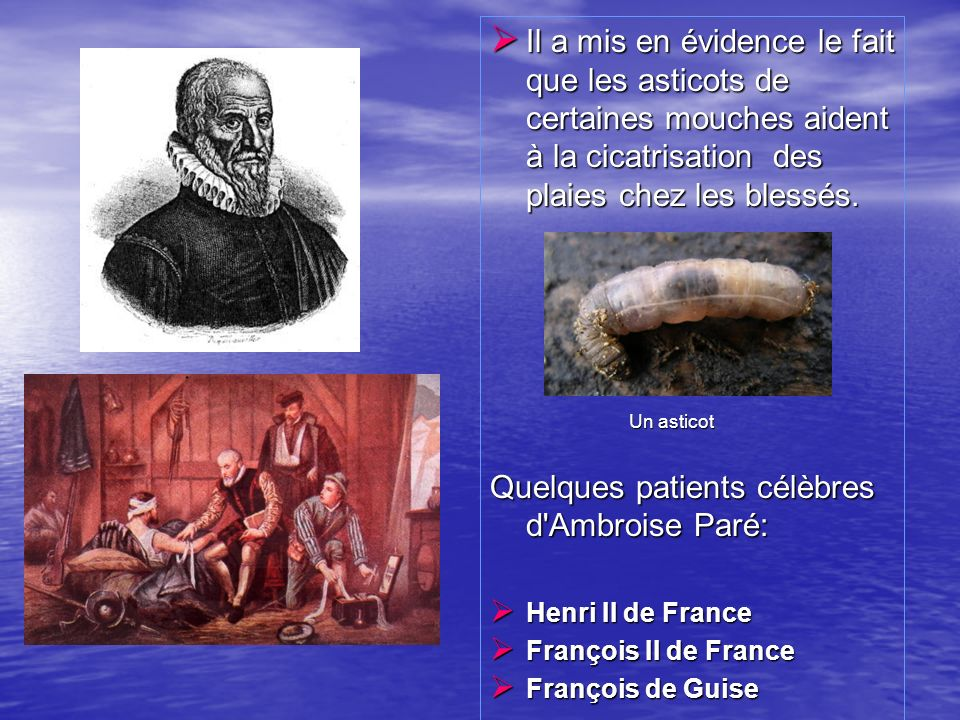 Quelques patients célèbres d Ambroise Paré: