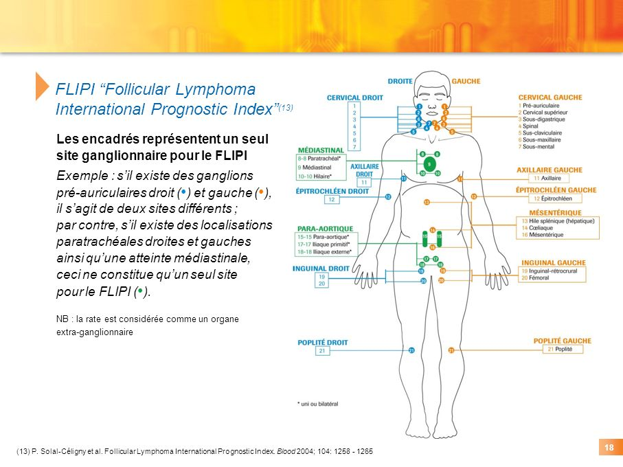 FLIPI Follicular Lymphoma International Prognostic Index (13)