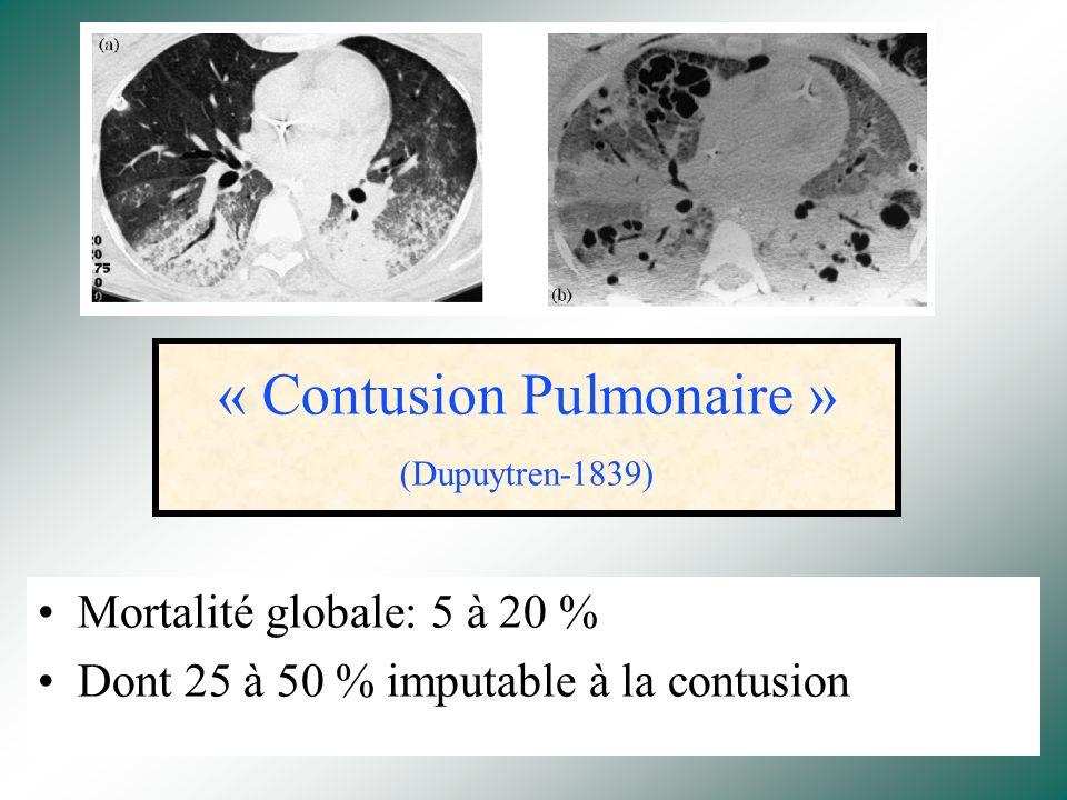 « Contusion Pulmonaire » (Dupuytren-1839)