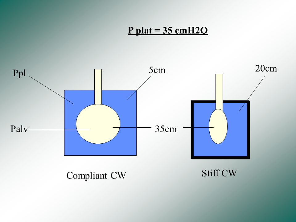 P plat = 35 cmH2O 5cm 20cm Ppl Palv 35cm Stiff CW Compliant CW