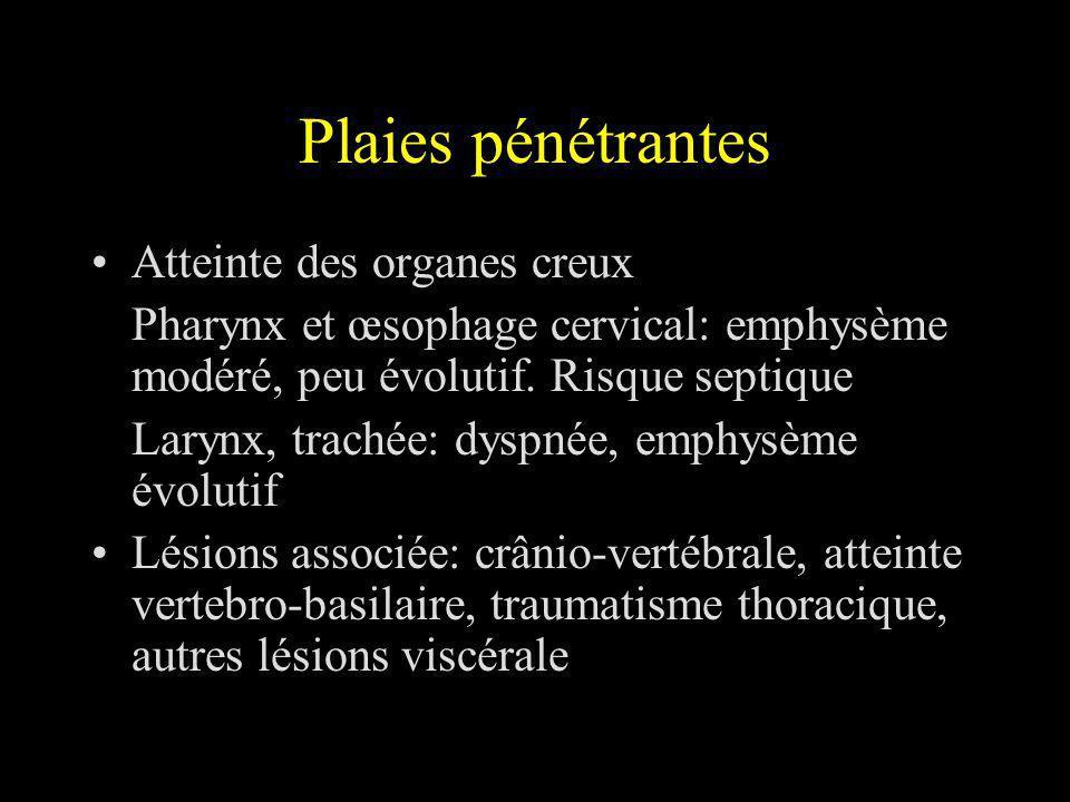 Plaies pénétrantes Atteinte des organes creux