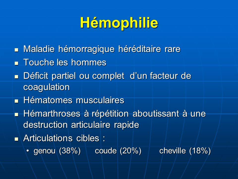 Hémophilie Maladie hémorragique héréditaire rare Touche les hommes