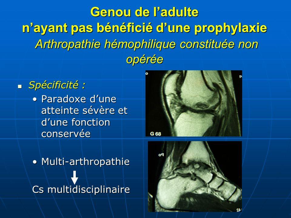 Genou de l'adulte n'ayant pas bénéficié d'une prophylaxie Arthropathie hémophilique constituée non opérée