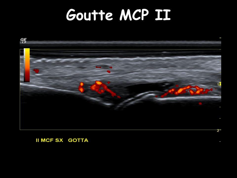 Goutte MCP II