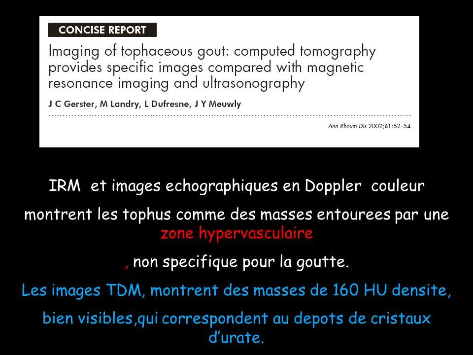 IRM et images echographiques en Doppler couleur