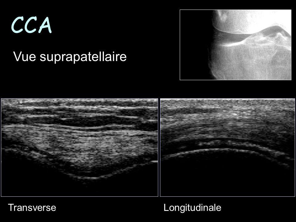 CCA Vue suprapatellaire Transverse Longitudinale