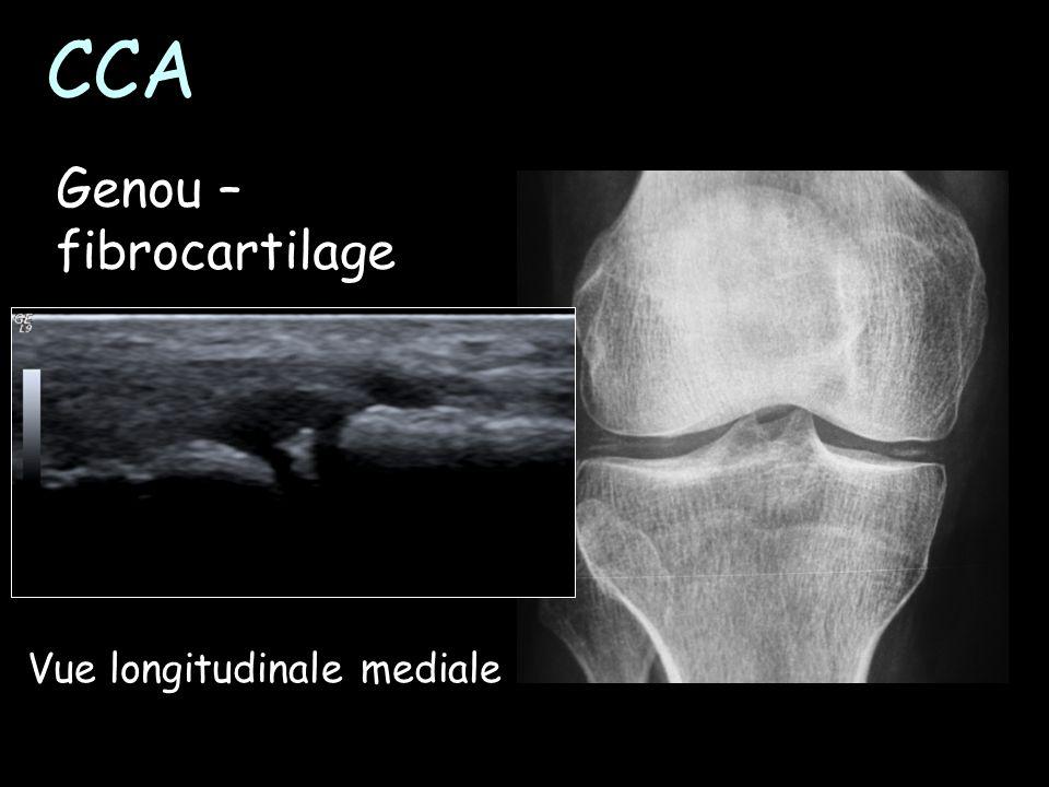CCA Genou – fibrocartilage Vue longitudinale mediale
