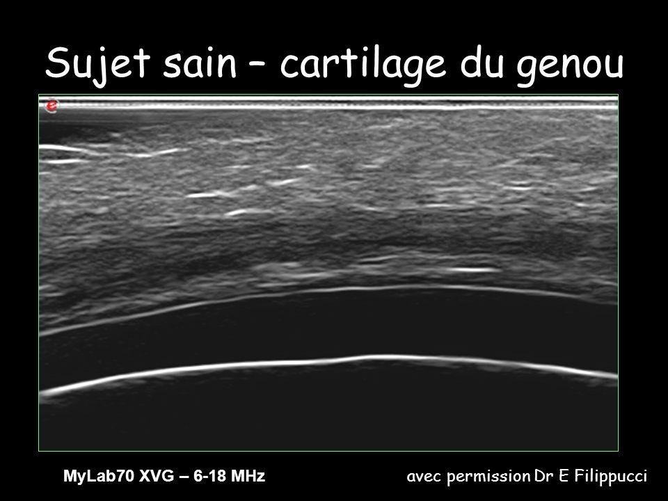 Sujet sain – cartilage du genou