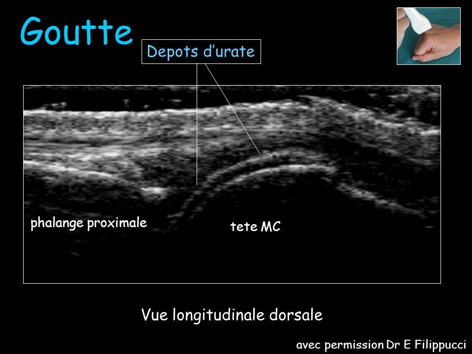 Vue longitudinale dorsale