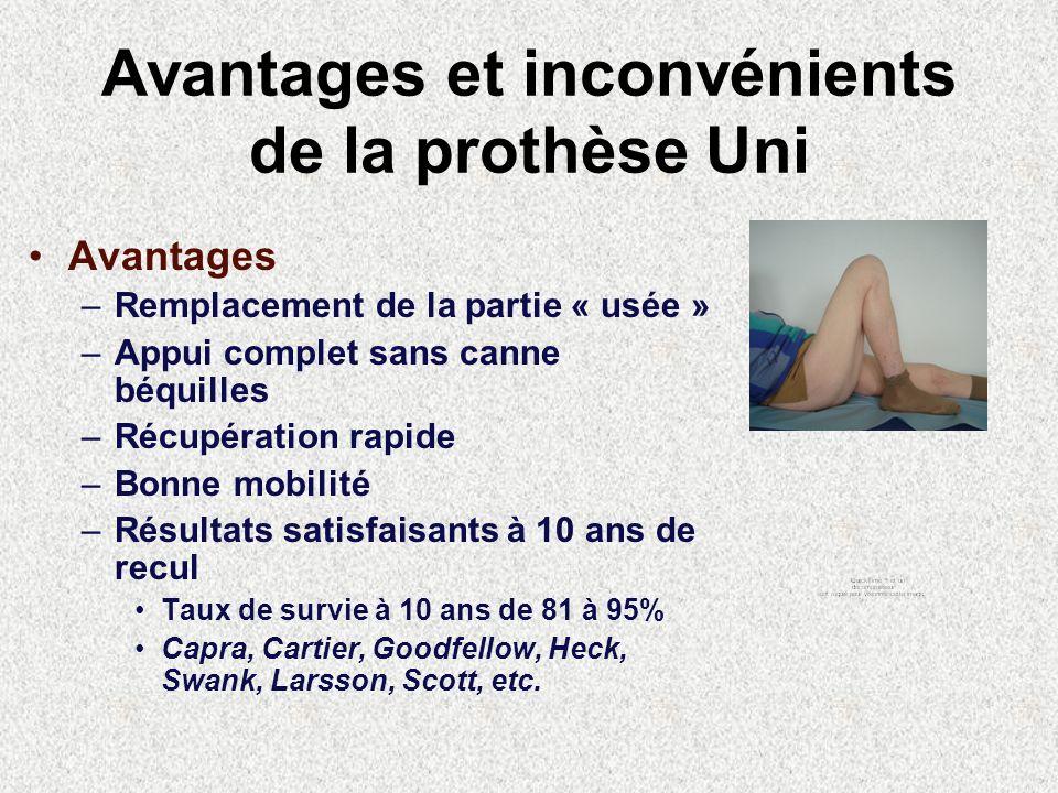 Avantages et inconvénients de la prothèse Uni