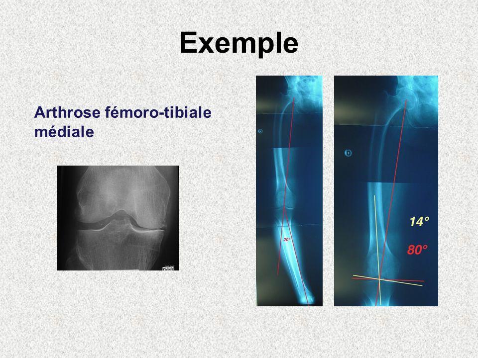 Exemple Arthrose fémoro-tibiale médiale