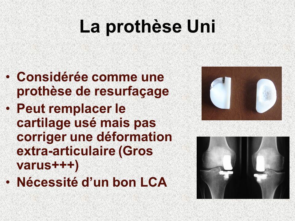 La prothèse Uni Considérée comme une prothèse de resurfaçage
