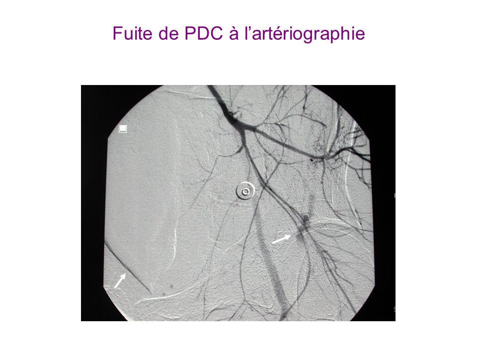 Fuite de PDC à l'artériographie