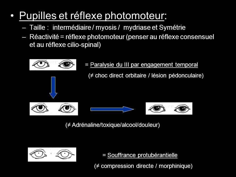 Pupilles et réflexe photomoteur: