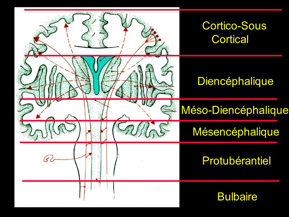 Cortico-Sous Cortical Diencéphalique Méso-Diencéphalique